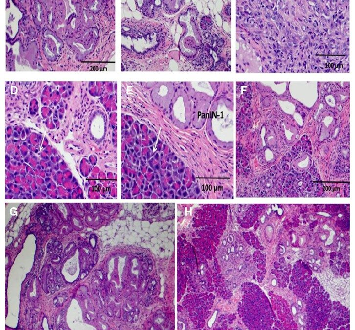 Vaccination with Polyclonal Antibody Stimulator (PAS) Prevents Pancreatic Carcinogenesis in the KRAS Mouse Model